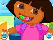 علاج اسنان دييغو ودورا