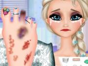 عملية جراحية للساق والقدم: elsa foot injured