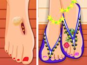 عملية جراحة القدم