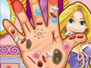 الأميرة ربانزل طبيب جراحة اليد