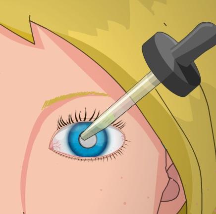 بنات جراحة العيون