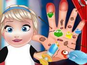 علاج جراحة يد السا